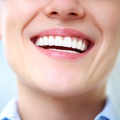 A patient who has a balanced smile thanks to gum contouring