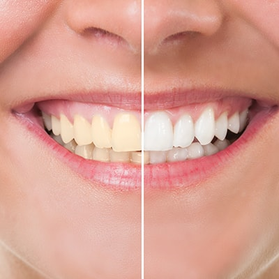 The before and after of a patient who used teeth whitening