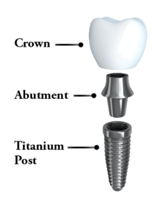 Anatomy of a dental implant: post, abutment, and crown.